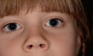 コンタック鼻炎Zの価格と副作用