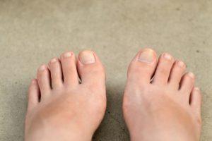 足の指がつる原因と治し方