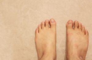 足の指の付け根が痛いときに考えられる原因と対処法