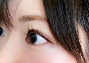 片目だけ痛いときに考えられる原因と対処法