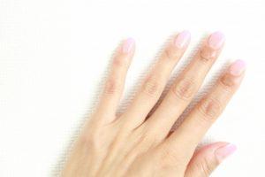 指や指の間の湿疹の原因と治し方