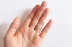 手の指のタコの正しい取り方とその後の処置!痛いときの対処法
