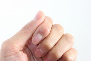 指を曲げると痛いときに考えられる原因と対処法